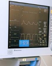 Cimalha e Ecomais oferecem monitores de sinais vitais ao Centro Hospitalar de Leiria