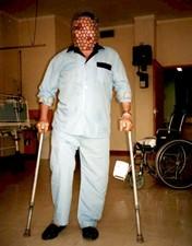 Cuidados a ter com próteses totais da anca